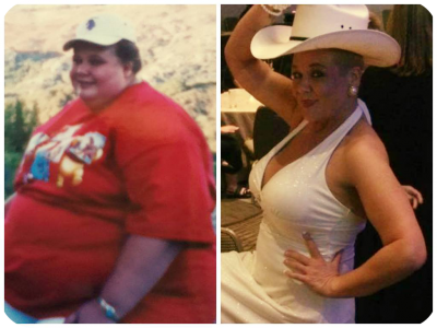 Weight Loss - Before and After